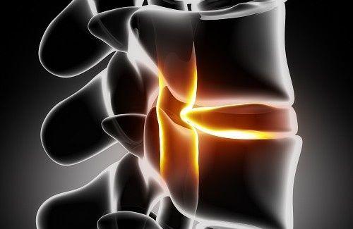Vous souffrez d'une sciatique ? Venez découvrir nos conseils pour la prévention et le traitement de la sciatique, si douloureuse !