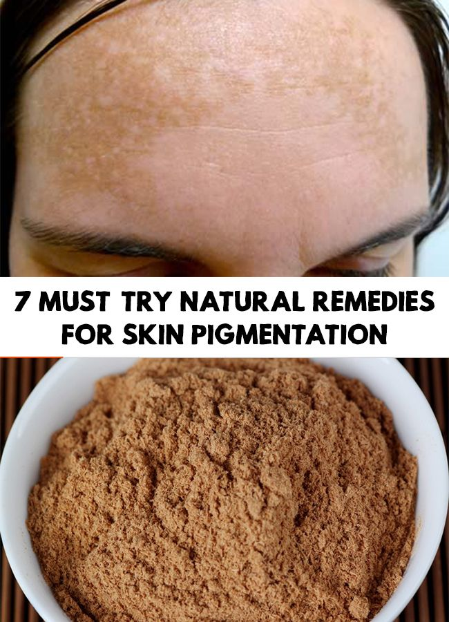 Pigmentation is a very common skin condition that can pop up at any time and any age. 7 Must-Try Natural Remedies For Skin Pigmentation