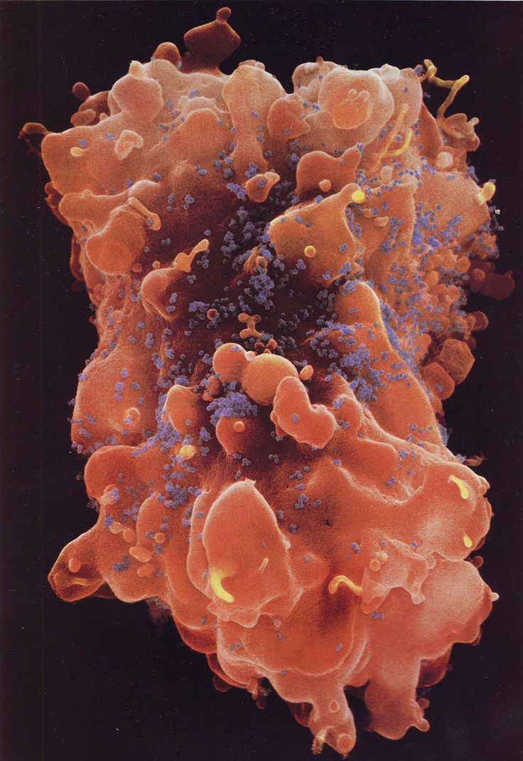 T-cell under attack from HIV  A major component of the immune system, a helper t-cell is under attack by Hiv/ AIDS (blue)