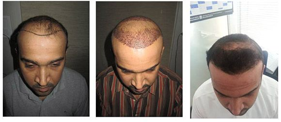 Testosterone Hormone Replacement method cause the hair loss issue after #hair #transplant surgery?