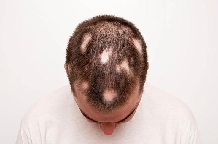 Hair Loss Treatment For Men Reviews #hairlosssurgery #hairlosstreatmentformen