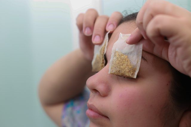 Swollen Eyelids Cure (with Pictures)   eHow   eHow