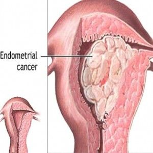 Endometrial Cancer Symptoms, Causes, Risk Factors, Complications, Diagnosis And Treatment