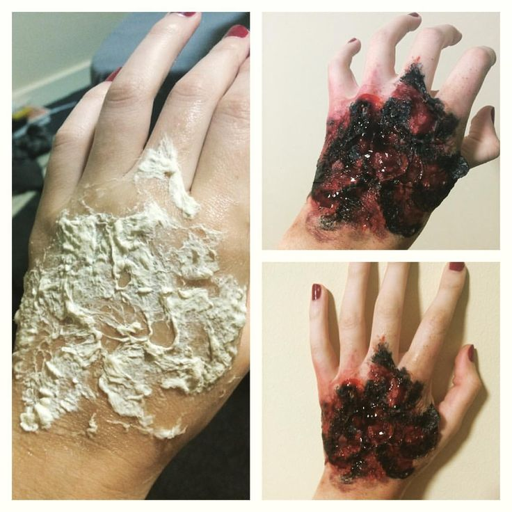 Before & after thingy: easy burned hand! #specialeffects #sfx #sfxmakeup #fxmakeupartist #fx #fxmakeup #makeup #zombie #fire ##sfxatlas #beauty