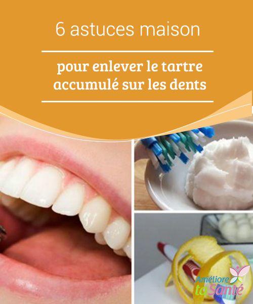 Les 20 meilleures id es de la cat gorie dentaire sur pinterest soins dentai - Comment enlever le tartre dans les wc ...