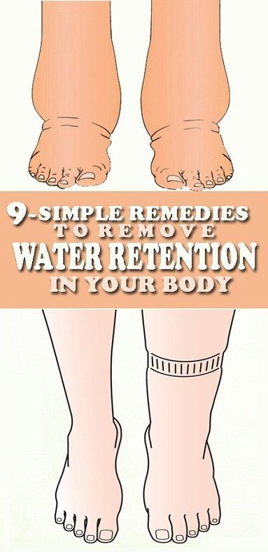 """Do you often find yourself complaining, """"I feel really bloated"""" or """"My feet are so swollen, I can't put my shoes on"""" ? You probably have a condition known as edema in medical terms, or more commonly called water or fluid retention. This refers to excessive accumulation of fluid in body tissues. It frequently occurs …"""