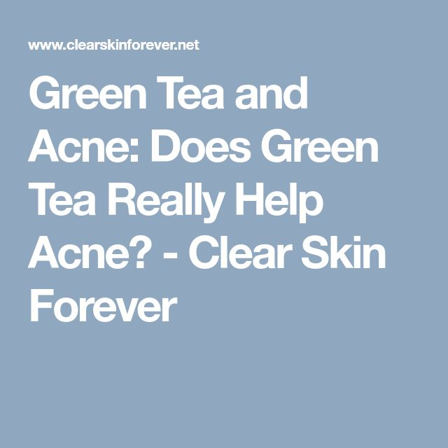 Green Tea and Acne: Does Green Tea Really Help Acne? - Clear Skin Forever