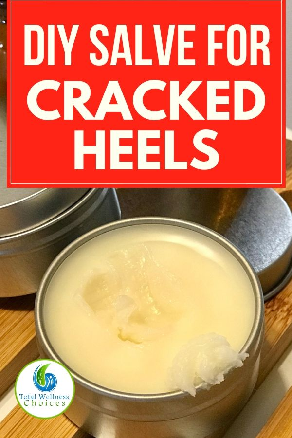 Searching for a DIY cracked heels remedy? Here is a homemade salve recipe with essential oils and other natural ingredients you will find helpful! #crackedheelsremedy #essentialoildiy #crackedheelsalve