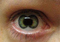 double iris, eyes, mutations, genetic mutations