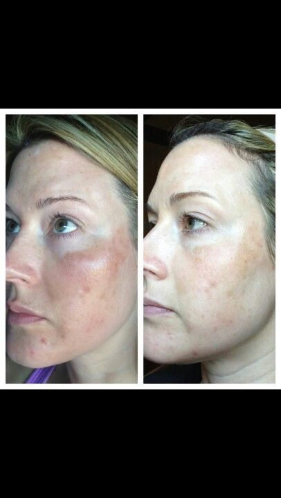 Discoloration results with Nerium!  Amazing difference! 30 day money back guarantee!