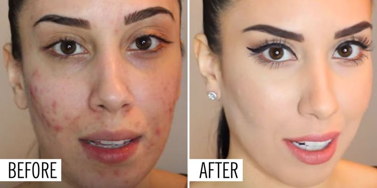 """Because who doesn't want to look like they have perfectskin? Cosmo magazine would like you to know that our foundation is amazing. The before and after """"model"""" (showing the Y product) is one of our presenters. She is using the cream Touch mineral foundation. PLUS, this foundation is in stock! Www.longlashsecret.com"""