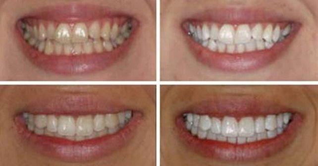 Эффективное отбеливание зубов в домашних условиях: лучше профессиональной чистки! #лайфхаки #технологии #вдохновение #приложения #рецепты #видео #спорт #стиль_жизни #лайфстайл