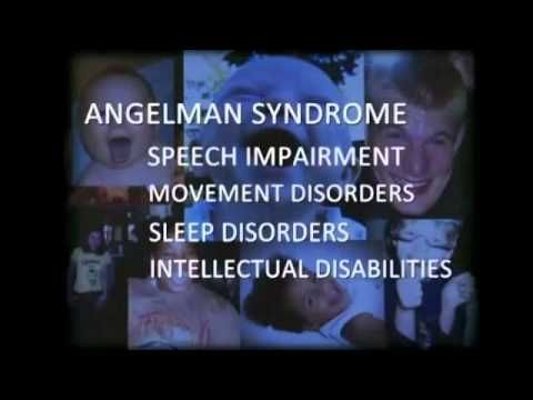Angelman Syndrome Breakthrough. Study out of UNC Chapel Hill used chemo drugs to turn off AS gene