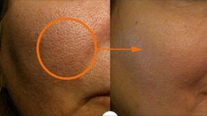 Recetas para reducir el tamaño de los poros