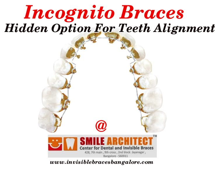 Incognito braces are the hidden braces for teeth alignment. Read more about Incognito Braces: http://goo.gl/SYH4Oa