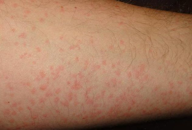 10 Wacky Allergic reactions To Issues Different Than Meals