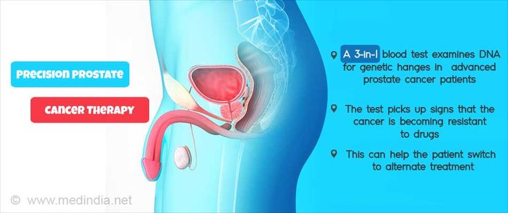 New Blood Test To Revolutionize Advanced Prostate Cancer Therapy