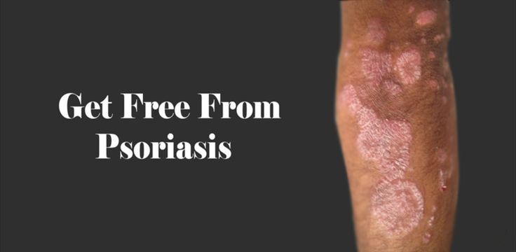 There are several types of psoriasis, but most commonly, it appears as red and scaly 3