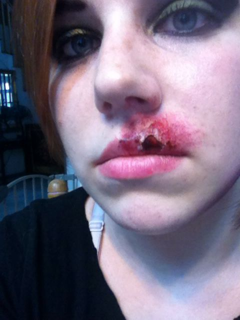 Busted Lip Makeup. Latex Fake Blood And Powder Makeups. | Horror Makeups | Pinterest | Lips ...