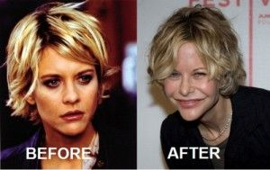Plastic surgery fails, Meg Ryan - photo courtesy of tumblr.- sadly she's turning into The Joker