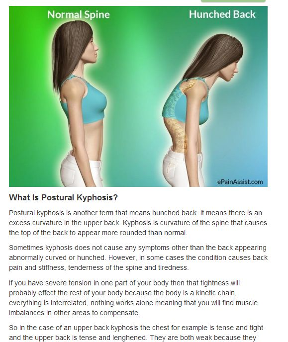 Natural Treatment Posture