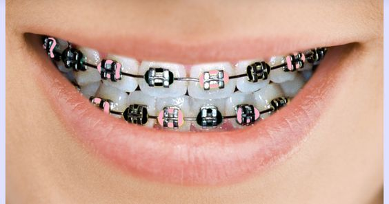 Colorful Braces Make More Than a Fashion Statement  For orthodontic patients who choose to make fashion statements with their mouths, colors are really heating up.  From soft pastels that coordinate with a wardrobe to bright hues for celebrating holidays or expressing school spirit, the colors appear on the elastic ties that bind the wires to the brackets.  These ties can be changed when the wires are changed. Read More:  http://www.kaportho.com/doctor_s-blog-ii/braces-fashion-function/