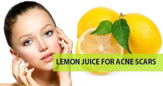 Want to get rid of the acne scars an dark spots by pimples. let's see How to Use Lemon Juice for Acne Scars Pimple Marks. This removes marks and makes skin glow
