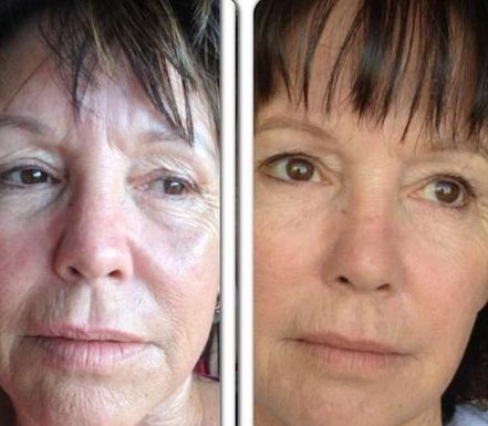 Face Manipulation Aerobics To Lift Up Droopy Facial Skin And Get Rid Of Face Wrinkles And Furrows
