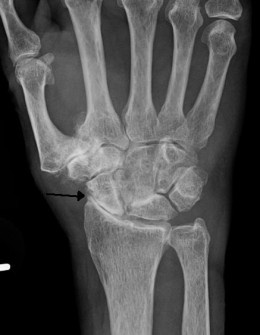 Severe arthritis of the joints in the hand