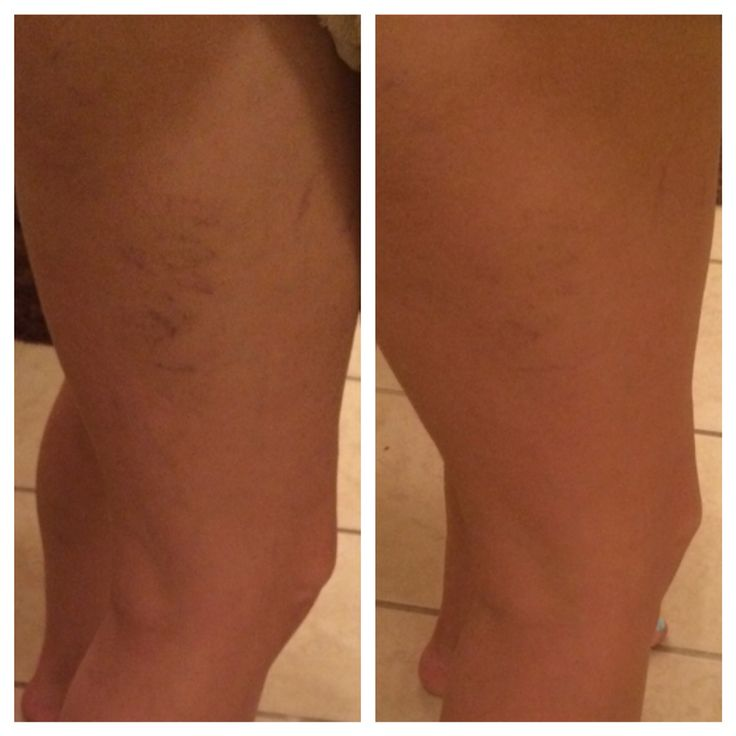 Veins in my legs are vanishing after 30 days with Luminesce cellular rejuvenation serum and Luminesce body renewal lotion containing stem cell technology.  The serum has over 200 growth factors from adult stem cells, formulated by Beverly Hills cosmetic surgeon Dr. Nathan Newman, innovator of the stem cell lift.  There is no other serum on the market containing this human growth factors!
