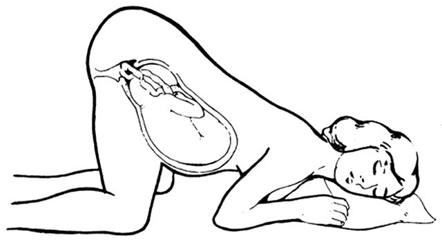 The Miles Circuit.  This is to help reposition a baby to start labor or to encourage better contractions.
