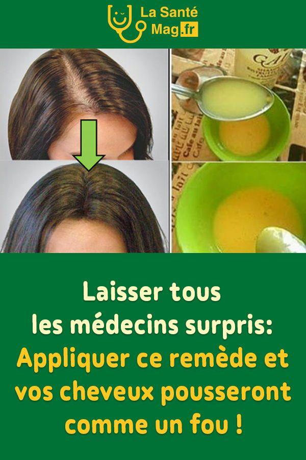 Laisser tous les médecins surpris: appliquer ce remède et vos cheveux pousseront comme un fou ! #médecin #cheveux #remède