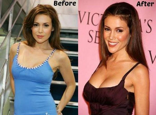 121 best Celebrity Breast Implants images on Pinterest   Breast, Katy perry and Plastic surgery