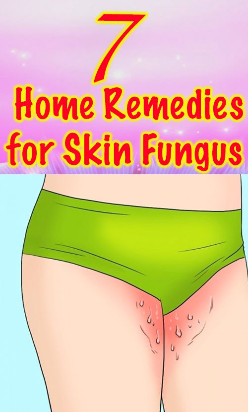 7 Home Remedies For Skin Fungus That Actually Work