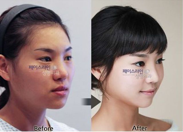84 best before \ after images on Pinterest Before after - plastic surgery consultant sample resume
