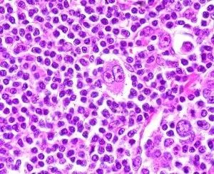 A 25 year old male presents with an enlarged, painless swelling in his neck. His doctor suspects Hodgkin's disease. What finding would be pathognomic for Hodgkin's disease? The Reed-Sternberg cell is pathognemonic for Hodgkin's disease. The Reed-Sternberg cell has a multi-lobed nucleus with is a large 'owl eye' nucleoli.Smudge cells (choice a) are cells that have been destroyed during the slide preparation. They are seen in acute leukemias.The Philadelphia chromosome (choice b) is a…