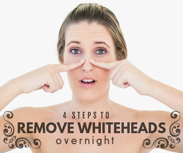 Hello, everyone, today's post is all about whiteheads and this is something people have a problem with. Several months ago I have a lot of whiteheads on my nose and, of course, I have to do something because they are really annoying, so I tried several methods and techniques to remove whiteheads and lastly I …