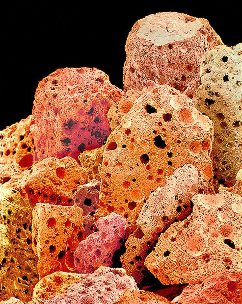 A coloured scanning electron micrograph of instant coffee granules.    This looks like some sort of disease plight on the planet.
