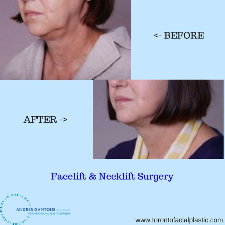 Here is the before and after photo of a #Facelift and #Necklift procedure