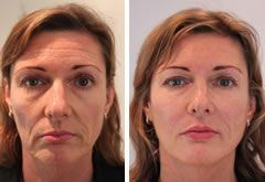 Non-Surgical And Organic Facelift Utilizing Facial Yoga Exercises