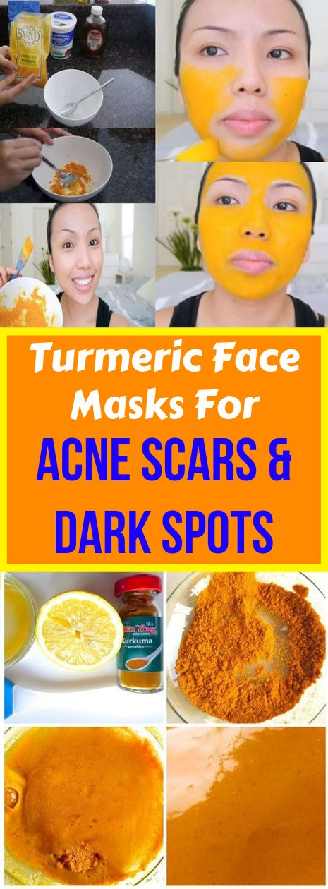 Turmeric Face Masks For Acne Scars & Dark Spots #…