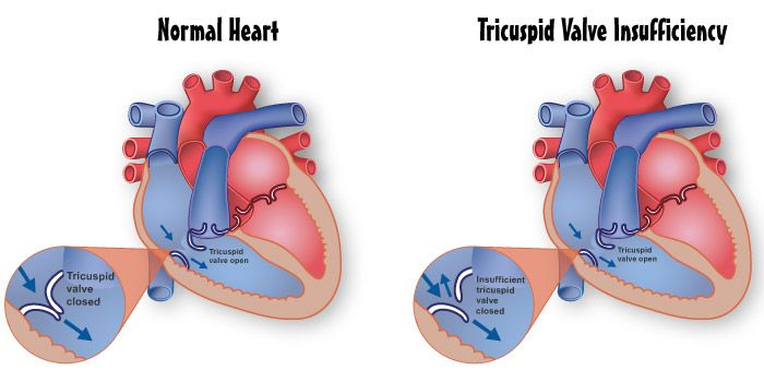 Tricuspid Valve Insufficiency (this is what my youngest was born with <3 )