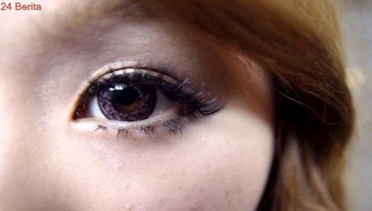 Tak Lepas Lensa Kontak 5 Bulan, Mata Wanita Jadi Mengerikan