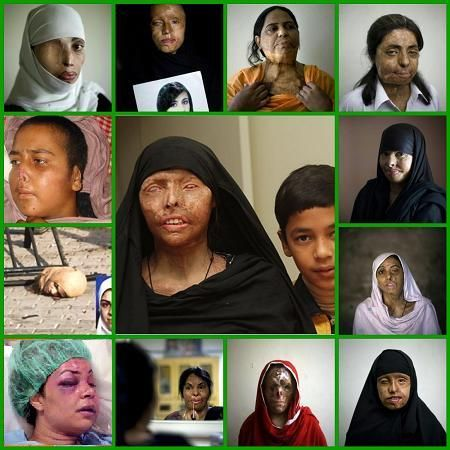 Honor mutilations of muslim women~ Read the article it is a real eye opener to what is considered normal for muslim women.