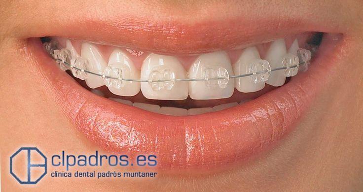 ¿Conoces los brackets de Zafiro? Este sistema posee la eficacia de los brackets tradicionales pero son casi transparentes. ¡Se funden con el color de tus dientes! Descubrelos aquí: https://clpadros.es/tratamientos/ortodoncia-invisible/#Ortodoncia_invisible_de_Zafiro