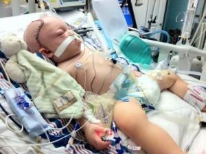 breastmilk helped to heal a brain injured, formula-fed baby