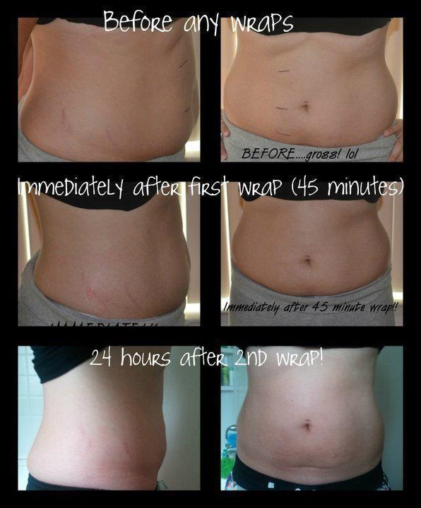 do weight loss belly wraps work