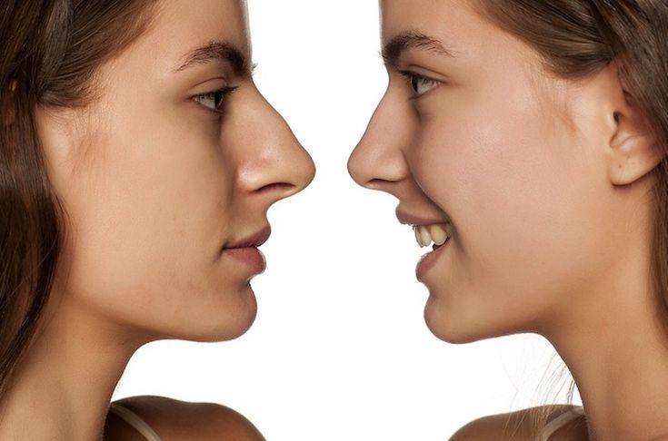 Les 25 meilleures id es de la cat gorie chirurgie esthetique nez sur pinterest c l brit - Bosse sur le nez apres coup ...