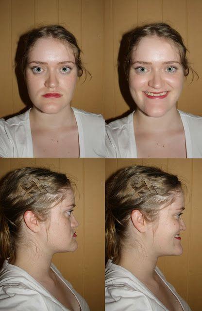 Pre corrective jaw surgery #jawsurgery # ...