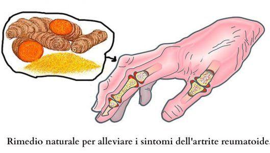 L'artrite reumatoide è un disturbo infiammatorio cronico che di solito riguarda le articolazioni più piccole, come le dita e le dita dei piedi. Nel tempo, può anche estendersi alle ginocchia, alle caviglie, gomiti, fianchi e spalle. Infine, può causare l'erosione ossea e la deformità articolare. È molto più comune nelle donne che negli uomini. Di …